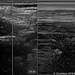 6.3 - Pneumothorax - US