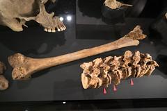 Viking bones showing signs of damage (quinet) Tags: 2017 canada knochen ontario rom royalontariomuseum toronto vikings bones os 124
