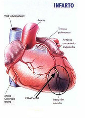 Colesterol (raisdata) Tags: colesterol data dci ldl life qualidadedevida rais raisdata raislife saúde vivasaudável vldl