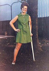 Late 60s / early 70s amputee girl (jackcast2015) Tags: handicapped disabled disabledwoman cripledwoman onelegwoman oneleggedwoman monopede amputee legamputee crutches crippledwoman