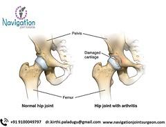 Hip joint replacement in Hyderabad (navigationjointreplacement) Tags: orthosurgreplacehiptotalarthritisanatomy femur femoralhead headoffemur pubictubercle pubicsymphysis ischopubicramus anteriorinferioriliacspine iliacspine greatertrochanter intertrochantericline lessertrochanter acetabulum obturatorforamen wu zygote iconsult pelvicregion pelivs hip hipbone oscoxae acetabularlabrum 3d normalhip pl990056en orthosurgreplacehiptotalarthritisnormalanatomy conseg content segmenting medical ortho orthopedic muscsk musculoskeletal amuscsk20140311v0002 92p07674 p07674 parks hipreplacementsurgery
