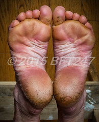 runners_feet_3tough_barefoot_runner_s_soles_by_bft_247-d9gzla3 (Matriux2011) Tags: barefoot dirtysoles cracksoles indian nepali barefootextreme talonescurtidos piesrajados