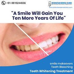 Best Dental Clinic in Delhi (drbhutani13) Tags: bollywood smile makeover delhi dental clinic near me best dentist west invisible teeth braces root canal treatment single sitting rct hospital painless