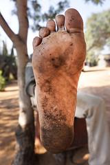 ui-1 (Matriux2011) Tags: barefoot india barefootextremos extreme feet hardsoles crackedsoles dirtyfeet