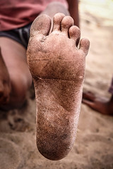 jordaansson-7-e1524120990399 (Matriux2011) Tags: barefoot india barefootextremos extreme feet hardsoles crackedsoles dirtyfeet