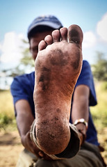 jordaan-10-657x1024 (Matriux2011) Tags: barefoot india barefootextremos extreme feet hardsoles crackedsoles dirtyfeet