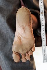 BAA_1582-copy (Matriux2011) Tags: barefoot india barefootextremos extreme feet hardsoles crackedsoles dirtyfeet