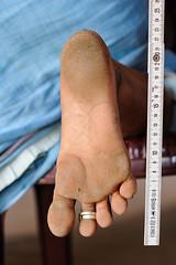 BAA_1473-copy (Matriux2011) Tags: barefoot india barefootextremos extreme feet hardsoles crackedsoles dirtyfeet