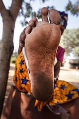 villagevr3-1 (Matriux2011) Tags: barefoot india barefootextremos extreme feet hardsoles crackedsoles dirtyfeet