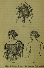 This image is taken from Page 148 of Weak lungs, and how to make them strong, or Diseases of the organs of the chest : with their home treatment by the movement cure (Medical Heritage Library, Inc.) Tags: tuberculosis calisthenics lung diseases medicalheritagelibrary cushingwhitneymedicallibrary americana date1864 id39002055096649medyaleedu