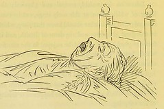 This image is taken from Page 24 of Shut your mouth (Medical Heritage Library, Inc.) Tags: sleep mouth breathing rcpedinburgh ukmhl medicalheritagelibrary europeanlibraries date1869 idb21975395