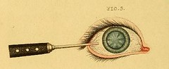 This image is taken from A treatise on some practical points relating to the diseases of the eye (Medical Heritage Library, Inc.) Tags: saunders john cunningham 17731810 eye cataract diseases medicalheritagelibrary francisacountwaylibrary americana date1811 idtreatiseonsomepr00saun
