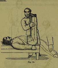 This image is taken from Page 346 of Weak lungs, and how to make them strong, or Diseases of the organs of the chest : with their home treatment by the movement cure (Medical Heritage Library, Inc.) Tags: tuberculosis calisthenics lung diseases medicalheritagelibrary cushingwhitneymedicallibrary americana date1864 id39002055096649medyaleedu