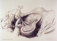 Anglų lietuvių žodynas. Žodis radical mastectomy reiškia radikali mastektomija lietuviškai.