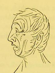 This image is taken from Page 74 of Shut your mouth (Medical Heritage Library, Inc.) Tags: sleep mouth breathing rcpedinburgh ukmhl medicalheritagelibrary europeanlibraries date1869 idb21975395