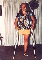1143-01 1970s HD Amputee with crutches (jackcast2015) Tags: amputee crippledwoman disabledwoman monopede crutches disabled oneleg amputeewoman woman hdamputee hipdisarticulation