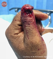 729 - bite - subtotal finger tip amputation (iem-student.org) Tags: amputation bite hand finger distal phalanx