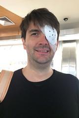 eye crash... (domit) Tags: jay eye injury car accident jette hospital belgium