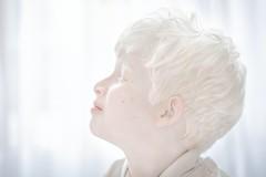 """Skin project"" Iraq Kurdistan (silvia.alessi) Tags: asia iraq skin kurdistan luce light child bianco white albinism albinismo albino ngc"