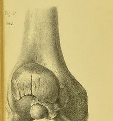 This image is taken from Page 152 of Military surgery (Medical Heritage Library, Inc.) Tags: wounds gunshot surgery military medicine rcseng ukmhl medicalheritagelibrary europeanlibraries date1863 idb22336412