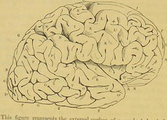 This image is taken from Page 184 of The human brain; its structure, physiology and diseases. [electronic resource] : With a description of the typical forms of brain in the animal kingdom. (Medical Heritage Library, Inc.) Tags: balneology brain nervous system neurophysiology anatomy compararive physiology comparative pathological dissection cerebrovascular mental illness insanity law epilepsy delirium tremens hydrocephalus hemorrhage hysteria scarlatina tumors cancer therapeutics phlebotomy digitalis drug minerals opium kingscollegelondon ukmhl medicalheritagelibrary europeanlibraries date1847 idb21307763
