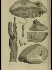 This image is taken from Page 712 of Nouveaux éléments de pathologie générale et de séméiologie ... (Medical Heritage Library, Inc.) Tags: pathology diagnosis rcpedinburgh ukmhl medicalheritagelibrary europeanlibraries date1869 idb21944969