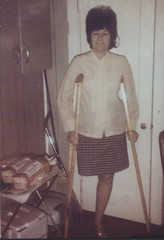 """1110-02 - 1960s """"beehive"""" amputee (jackcast2015) Tags: amputee crippledwoman disabledwoman monopede crutches disabled oneleg amputeewoman woman hdamputee hipdisarticulation"""