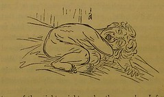 This image is taken from Page 62 of Shut your mouth (Medical Heritage Library, Inc.) Tags: mouth breathing wellcomelibrary ukmhl medicalheritagelibrary europeanlibraries date1869 idb28114383