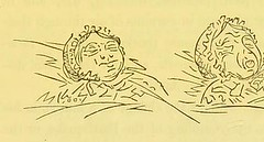This image is taken from Page 83 of Shut your mouth (Medical Heritage Library, Inc.) Tags: sleep mouth breathing rcpedinburgh ukmhl medicalheritagelibrary europeanlibraries date1869 idb21975395