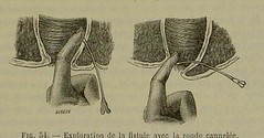 This image is taken from Eléments de pathologie chirurgicale./ [electronic resource], 5 (Medical Heritage Library, Inc.) Tags: women surgery operative pathology surgical wounds injuries fistula tumors amputations fractures hernia gynecology kingscollegelondon ukmhl medicalheritagelibrary europeanlibraries date1868 idb213096810005